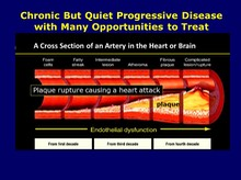 Atherosclerosis is a Naturally Progressive Disease