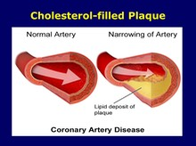 Cholesterol-filled Plaque