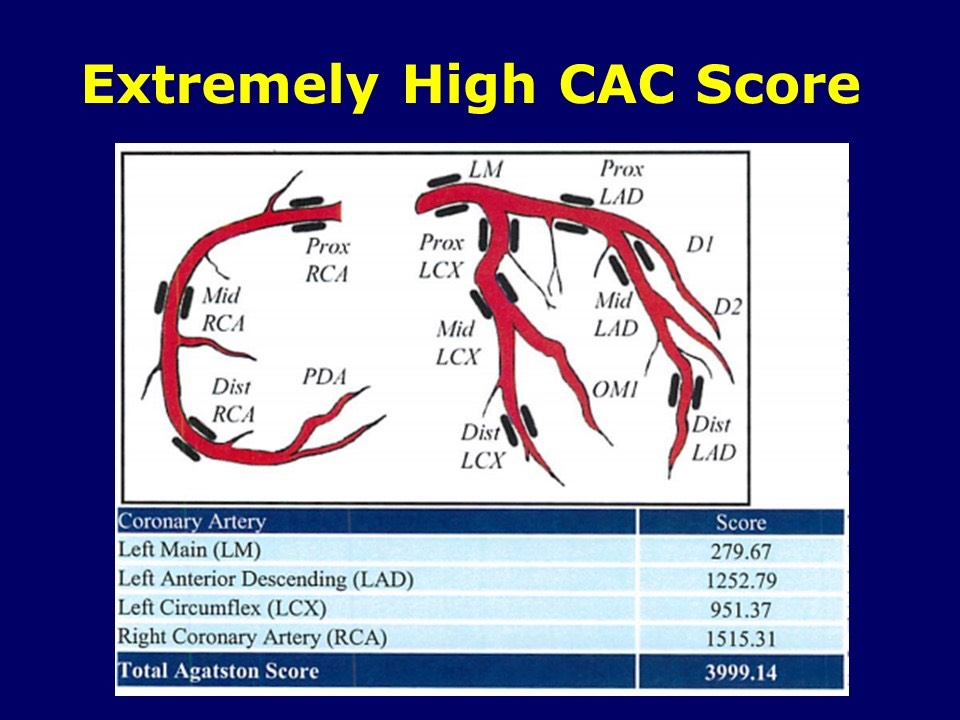 Extremely High CAC Score