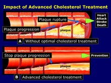 Impact of Advanced Cholesterol Treatment