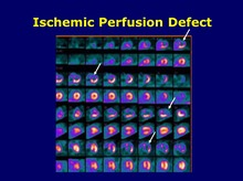 Ischemic Perfusion Defect
