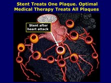 Stent Treats One Plaque, Medical Therapy Treats All Plaques