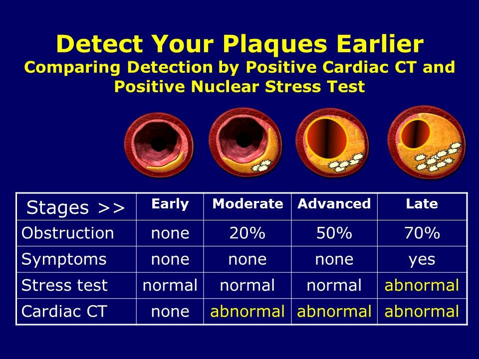 Detect Your Plaques Earlier and Live